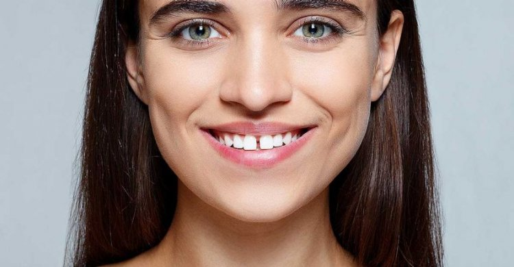 What Astrology Says About Gap In The Teeth?